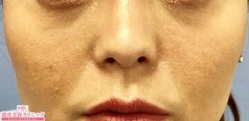 湘南美容クリニック大阪梅田院の目元の整形、くま治療の症例写真[アフター]