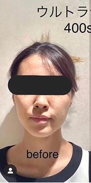 銀座長瀬クリニック 大阪院のシワ・たるみ(照射系リフトアップ治療)の症例写真[ビフォー]