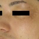 肝斑治療:レーザートーニング、肝斑内服、医療用オバジなど[ビフォー]