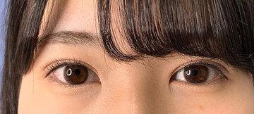 湘南美容クリニック新潟院の目・二重の整形の症例写真[アフター]