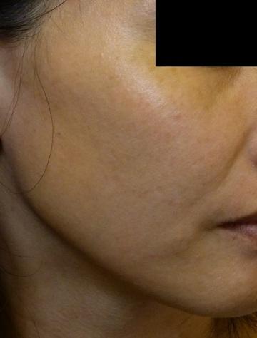さやか美容クリニック・町田のシミ治療(シミ取り)・肝斑・毛穴治療の症例写真[アフター]