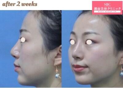 プリマリフト+ヒアルロン酸(顎)の症例写真[アフター]