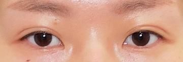 東京中央美容外科・美容皮膚科の目・二重の整形の症例写真[アフター]