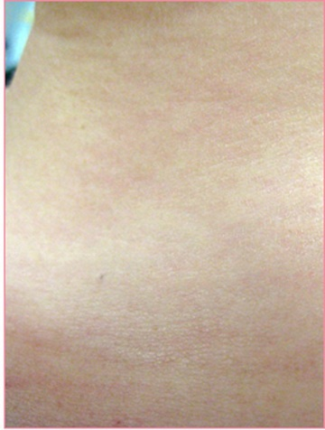 城本クリニックのホクロ除去・あざ治療・イボ治療の症例写真[アフター]