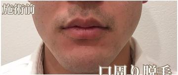 KOBE CLINIC 美容皮膚科・美容クリニックの医療脱毛の症例写真[ビフォー]