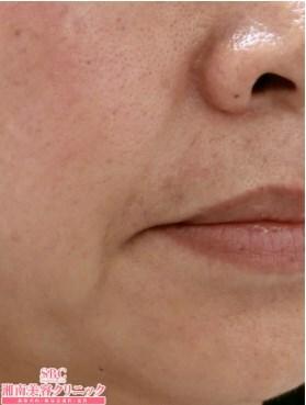 湘南美容クリニック大阪梅田院のその他の美容皮膚科治療の症例写真[ビフォー]