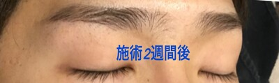 【3D眉メディカルアートメイク】症例写真の症例写真