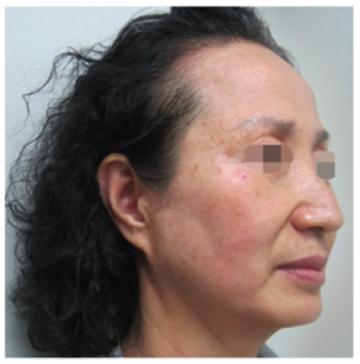 共立美容外科・歯科のシワ・たるみ(照射系リフトアップ治療)の症例写真[アフター]