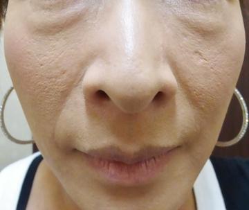スキンコスメクリニックグループのアンチエイジング・美容点滴の症例写真[ビフォー]