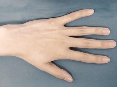 ひじ下・手指甲の医療レーザー脱毛の症例写真[アフター]