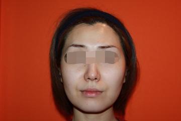 クリニックDo田園調布のシワ・たるみ(照射系リフトアップ治療)の症例写真[ビフォー]