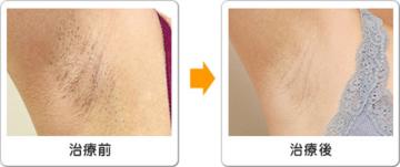 ワイズスキンケアクリニックの医療脱毛の症例写真