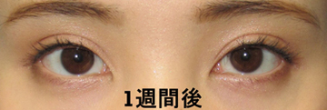 湘南美容クリニック 品川院の目・二重の整形の症例写真[アフター]