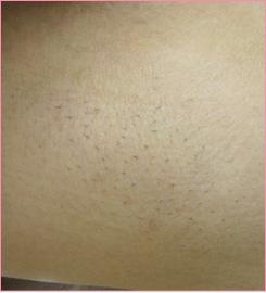 ■レーザー脱毛(ワキ)の症例写真[ビフォー]