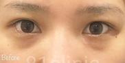 81clinicの症例写真[ビフォー]
