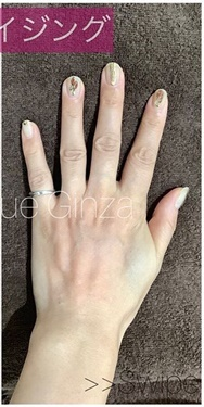 La Clinique Ginza(ラ クリニック銀座)のその他の美容皮膚科治療の症例写真[アフター]