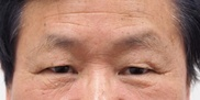 静岡美容外科橋本クリニックの目元の整形、くま治療の症例写真[ビフォー]