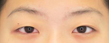 湘南美容クリニック武蔵小杉院の目・二重の整形の症例写真[ビフォー]