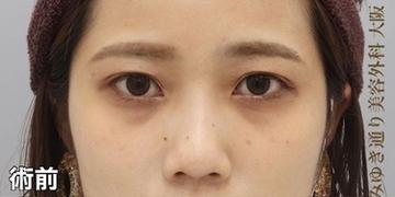 銀座みゆき通り美容外科 大阪院の目元整形・クマ治療の症例写真[ビフォー]