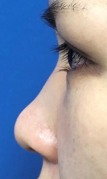 湘南美容クリニック赤羽院の鼻の整形の症例写真[ビフォー]