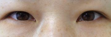 ドーズ美容外科の目・二重の整形の症例写真[ビフォー]