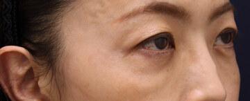 ヴィンテージビューティークリニック横浜の目元整形・クマ治療の症例写真[アフター]