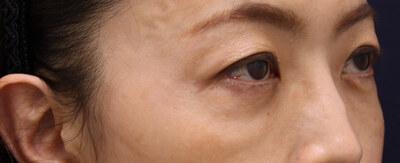 切らない下まぶたのふくらみ取り治療 両側の症例の症例写真[アフター]