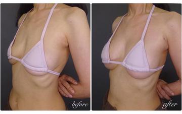 TCB東京中央美容外科 中野院の豊胸手術(胸の整形)の症例写真