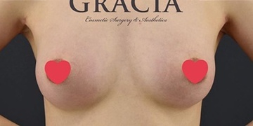 GRACIA clinic(グラシアクリニック)の豊胸手術(胸の整形)の症例写真[アフター]