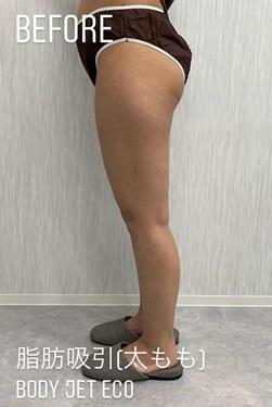 GLANZ CLINIC (グランツクリニック)の脂肪吸引の症例写真[ビフォー]