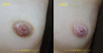 ルーチェ東京美容クリニック池袋院の乳首・乳輪の整形の症例写真