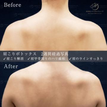 表参道メディカルクリニック新宿院(メディカルブロー新宿院)のその他の美容皮膚科治療の症例写真