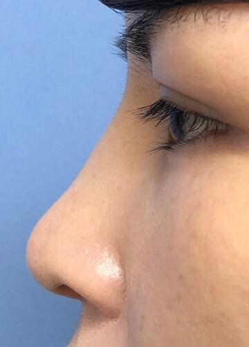 湘南美容クリニック 赤羽院の鼻の整形の症例写真[アフター]