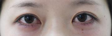 みずほクリニックの目・二重整形の症例写真[ビフォー]
