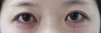 二重術切開と目頭切開の組み合わせで目を最大限大きく見せるの症例写真[ビフォー]