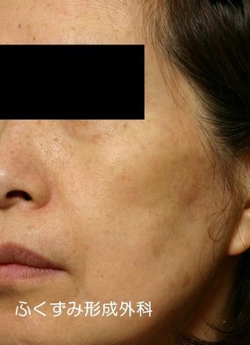 ふくずみ皮フ科形成外科のシミ治療(シミ取り)・肝斑・毛穴治療の症例写真[アフター]