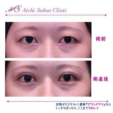 あいち栄クリニックの目・二重の整形の症例写真