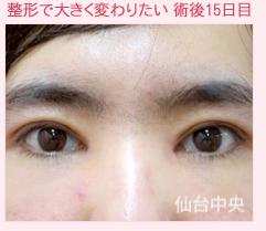 仙台中央クリニックの目・二重の整形の症例写真[アフター]