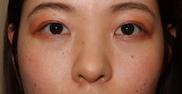 麹町皮ふ科・形成外科クリニックの症例写真[アフター]