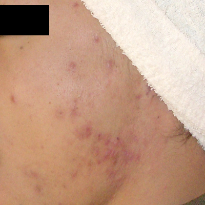 ニキビ治療:エンジェルピール、ロングパルスヤグレーザーの症例写真[ビフォー]