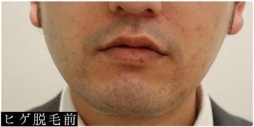 ユウコ形成外科クリニックの医療脱毛の症例写真[ビフォー]