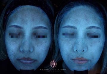 CHERI BEAUTY CLINIC (シェリビューティークリニック)のシミ治療(シミ取り)・肝斑・毛穴治療の症例写真[アフター]