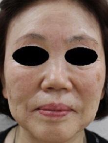 の顔のしわ・たるみの整形の症例写真[アフター]