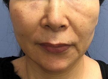 湘南美容クリニック 川崎院の顔のしわ・たるみの整形(リフトアップ手術)の症例写真[アフター]