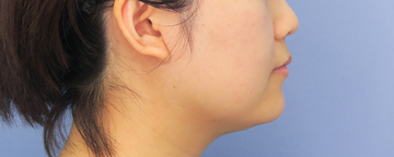 湘南美容クリニック武蔵小杉院の脂肪吸引の症例写真[ビフォー]