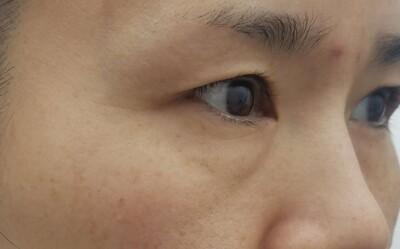 MD式眉下切開法・アイバックリムーブ法/術後1ヶ月の症例写真[ビフォー]