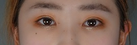 TCB東京中央美容外科の目・二重整形の症例写真[アフター]