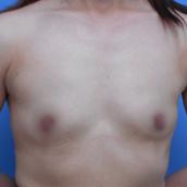 共立美容外科・歯科の豊胸手術(胸の整形)の症例写真[ビフォー]