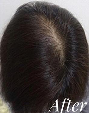 表参道スキンクリニックの薄毛治療・AGA・発毛の症例写真[アフター]