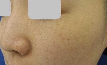 そばかす(レーザートーニング両頬)の治療の症例写真[ビフォー]